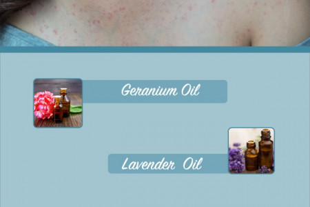 4 Essential Oils for Psoriasis Infographic