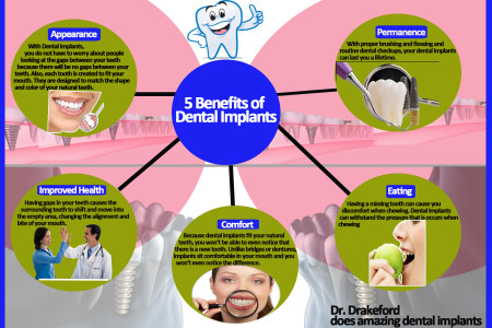 5 Benefits of Dental Implants Infographic