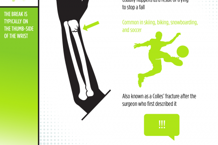5 Most Commonly Broken Bones Infographic