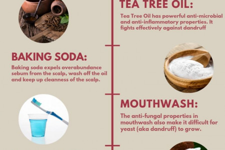 8 DIY - Home Remedies for Dandruff Infographic