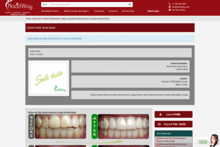 Dental Tourism Croatia - Before and After Dental Veneers in Croatia at Smile Studio Infographic