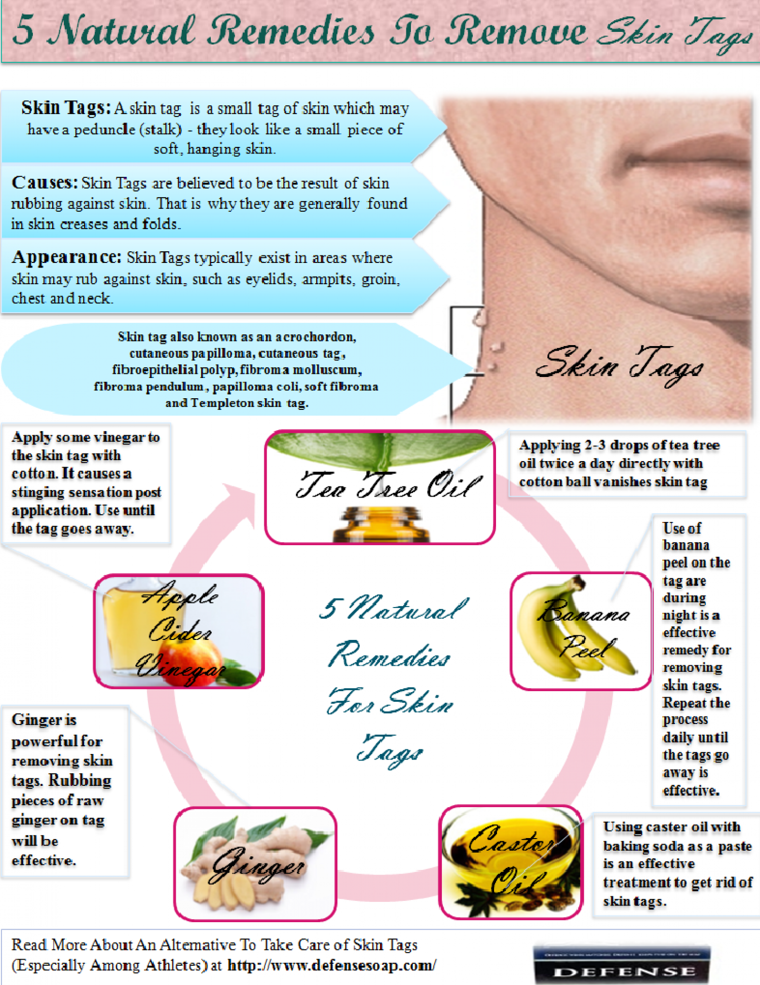 Five Natural Remedies For Skin Tags Infographic