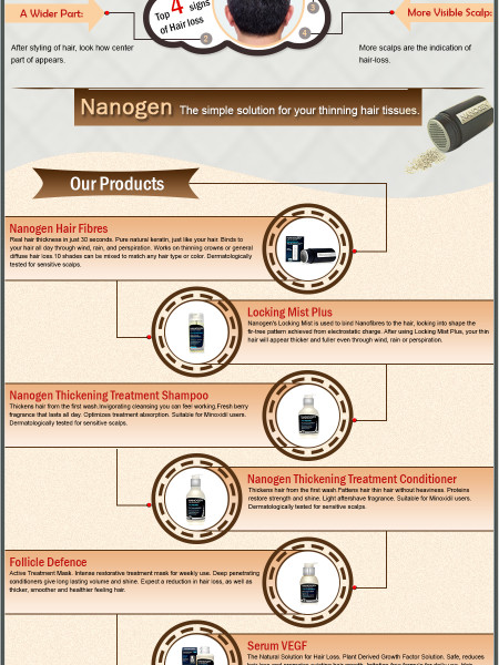 Hair-Loss Treatment Infographic