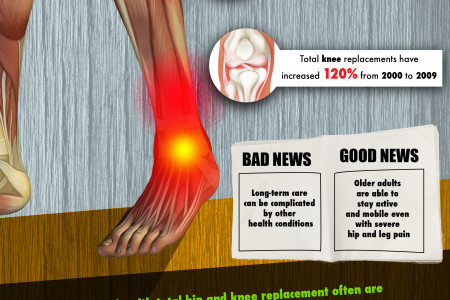 Hip and Leg Pain by the Numbers Infographic