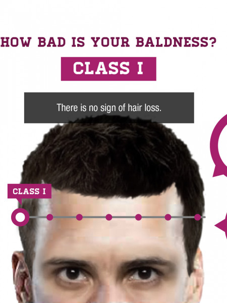 Male Baldness Scale: How Bad Is Your Bald? Infographic