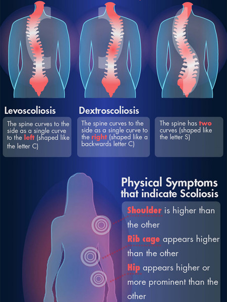Scoliosis Signs & Symptoms Infographic