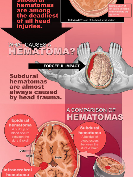A Guide to Brain Injury and Subdural Hematoma  Infographic