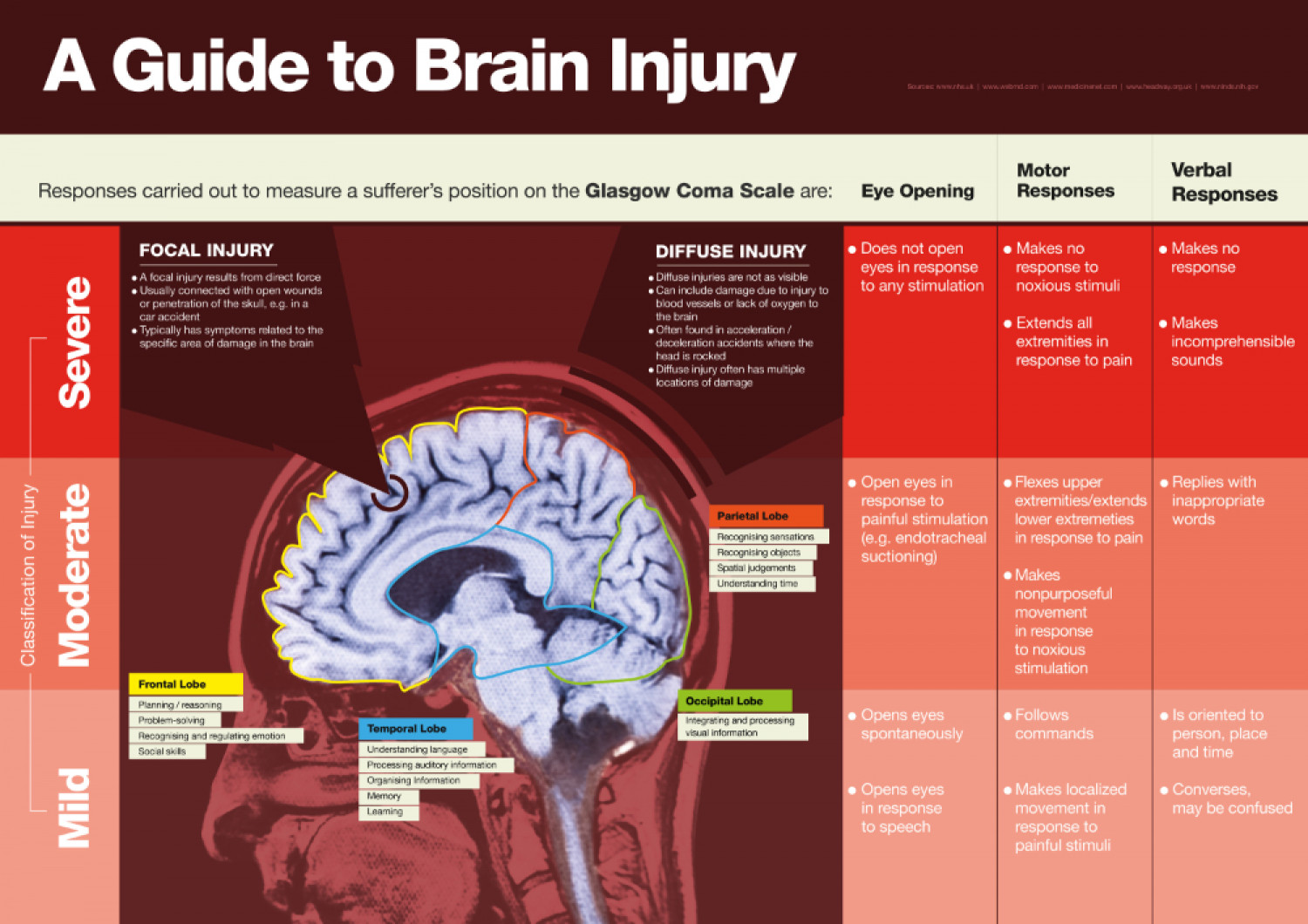 A Guide to Brain Injury Infographic