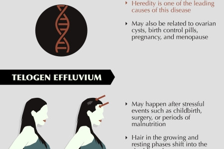 A Woman's Guide to Hair Loss Infographic
