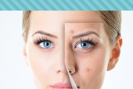 Acne: One In All Infographic