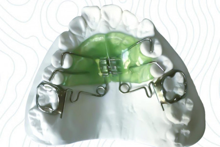 Active Plates   China Orthodontic Infographic