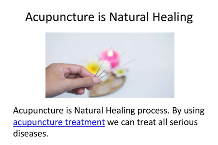 Acupuncture is Natural Healing Infographic