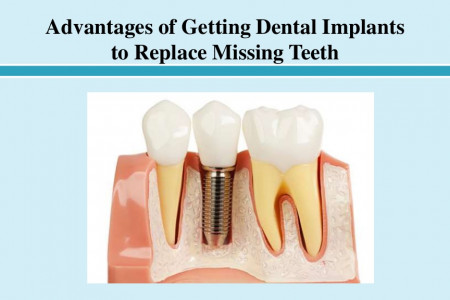 Advantages of Getting Dental Implants to Replace Missing Teeth Infographic