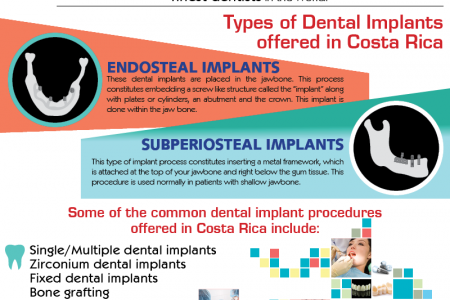 An Eco Tourism Holiday with Dental implants in Costa Rica Infographic