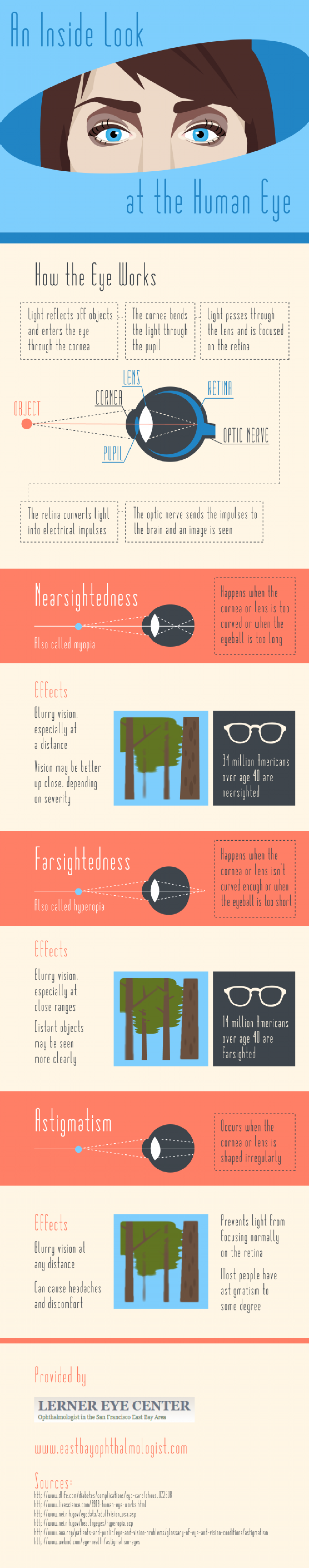 An Inside Look at the Human Eye Infographic
