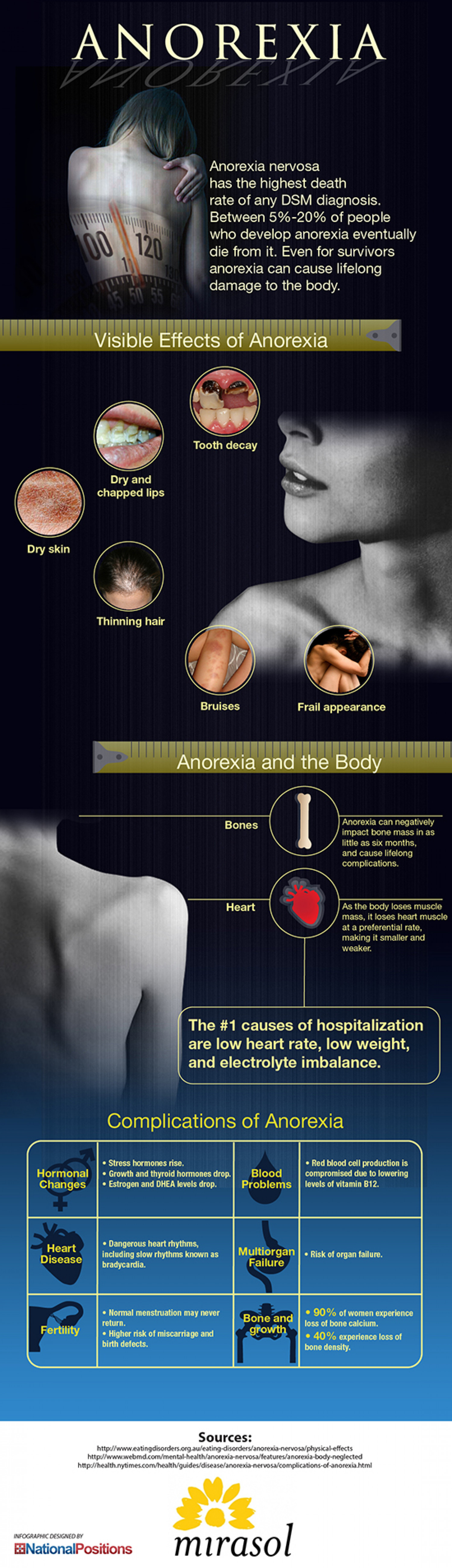 Anorexia and Your Body Infographic