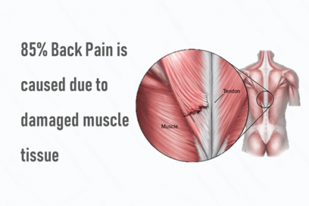Back Pain Solution: Back Pain Solution: Back Pain Causes, Symptoms & Treatment   QI Spineain Causes, Symptoms & Treatment   QI Spine Infographic