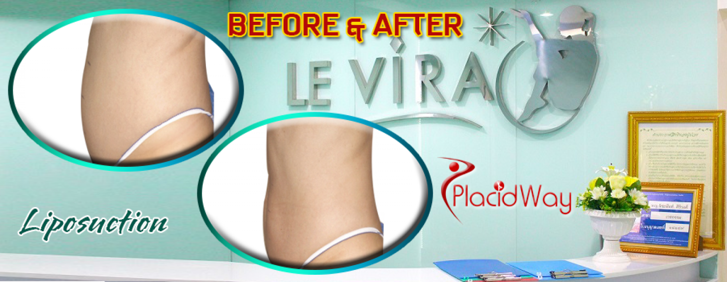 Before and After Liposuction Infographic