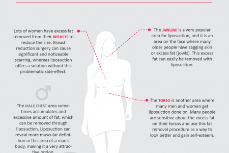 Best areas of your body to have liposuction Infographic