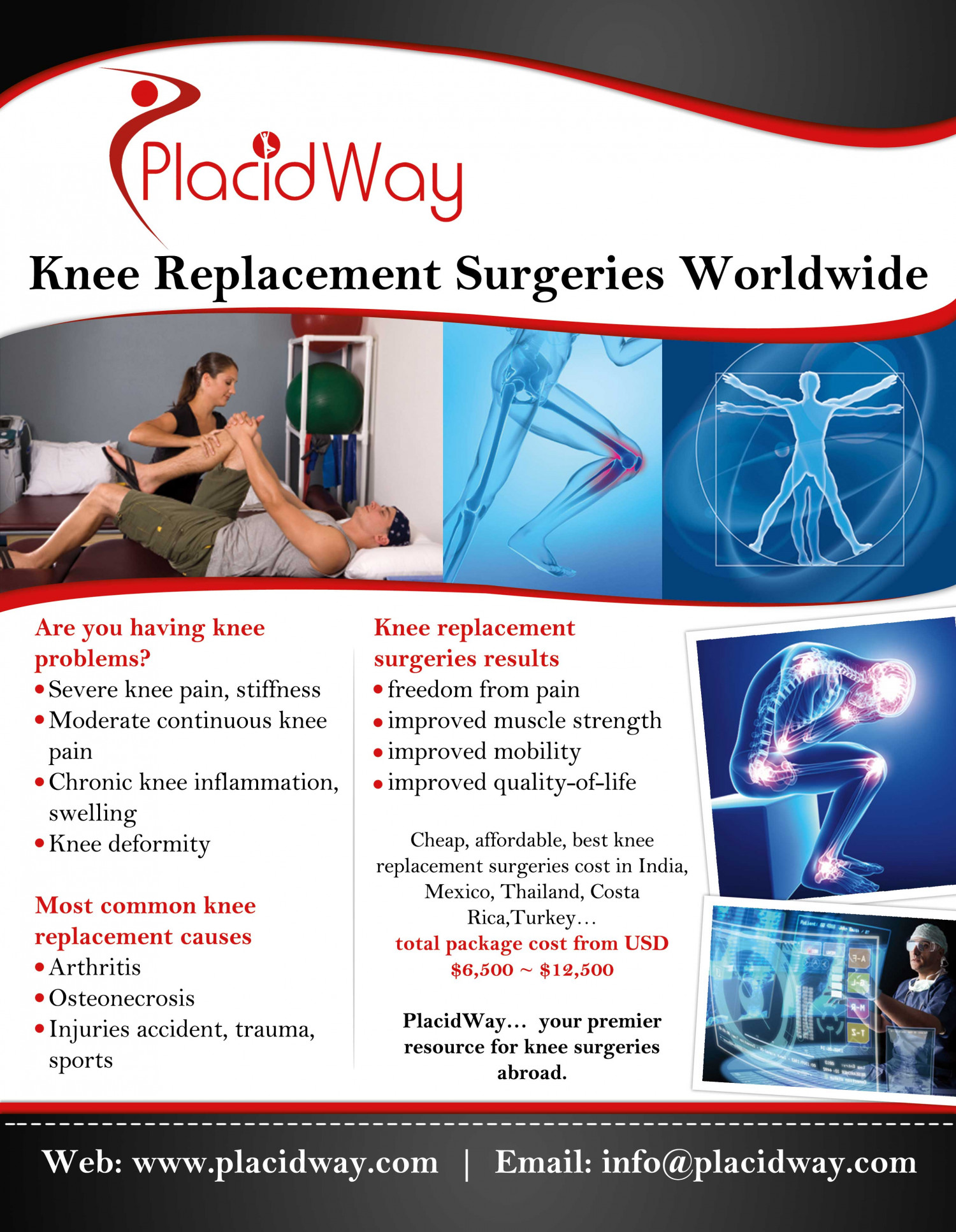 Best Knee Replacement  Surgery In Mexico Infographic