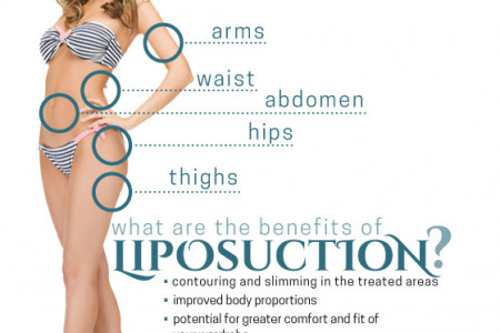 Body Contour Liposuction Infographic