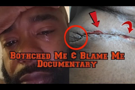 Botched plastic surgery [ Botched Me and Blamed me Documentary] #plasticsurgery #botched Infographic