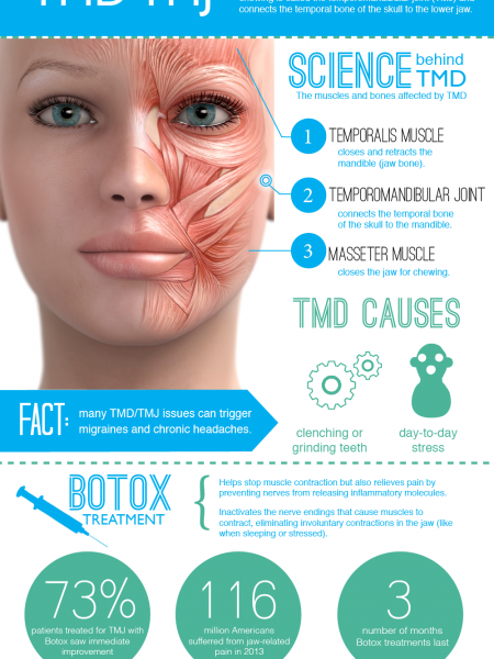 Botox for a TMD, TMJ+ Migraines Infographic