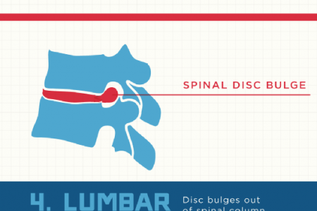 Breaking Down Your Back Pain Risks Infographic