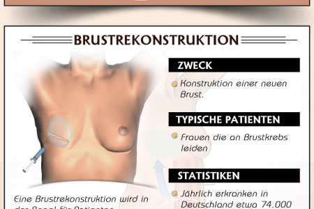 Breast Enhasment Infographic