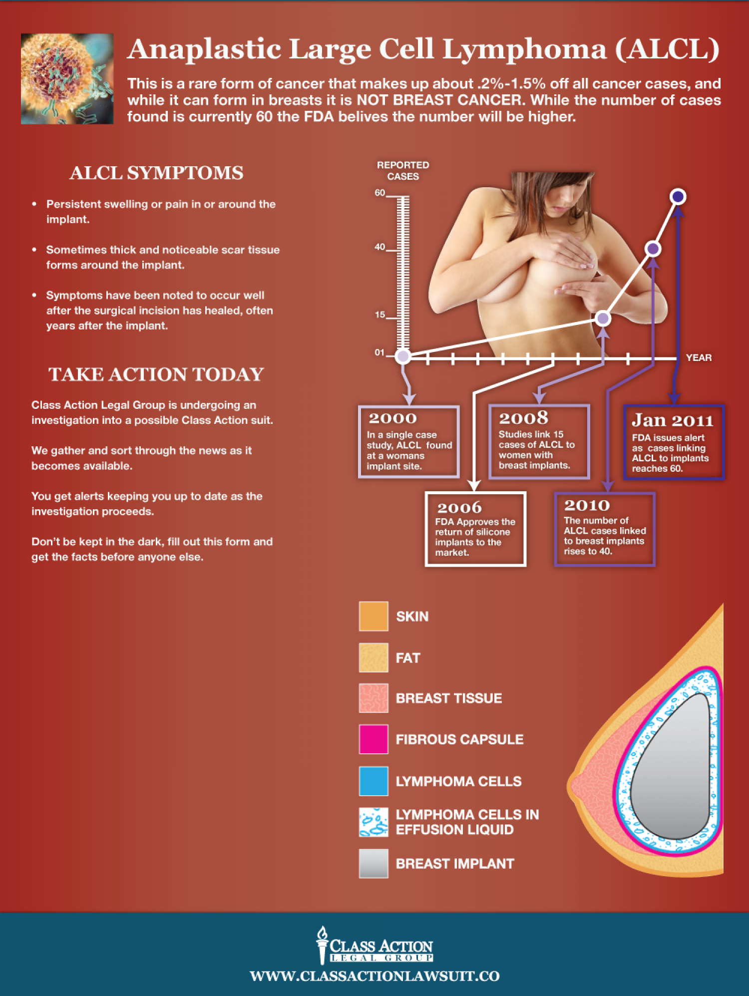 Breast Implants & ALCL Cancer Infographic