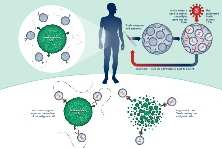 CAR T-Cell Immunotherapy Infographic