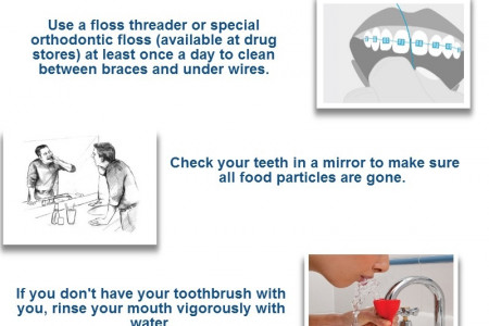 Dental Braces & Oral Care Infographic