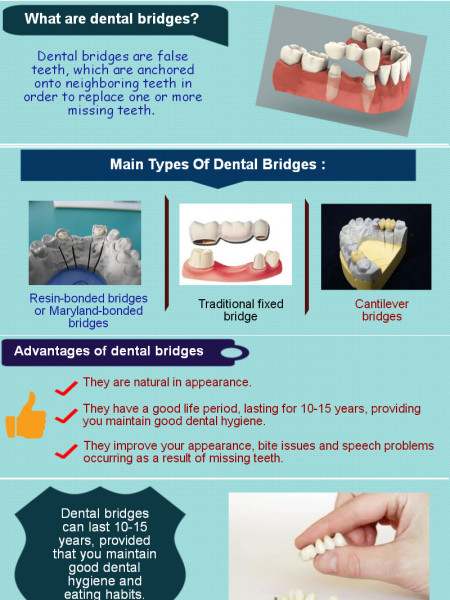 Dental Bridges Infographic