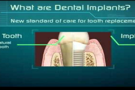 Dental Implants - New way to confident smile Infographic