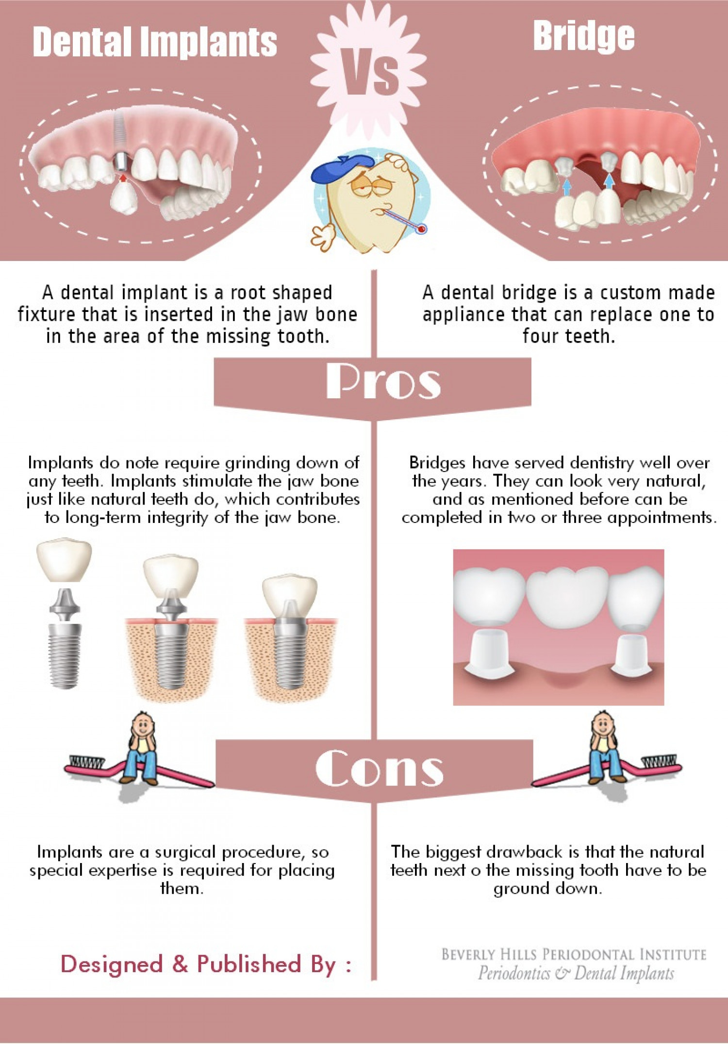 Dental Implants vs. Bridges Infographic