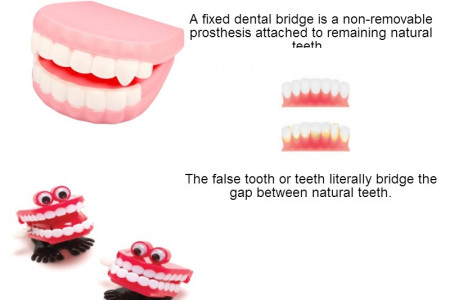 Dental Implants vs. Fixed Dental Bridges Infographic