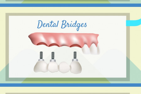 Dental Services in Chicago Infographic