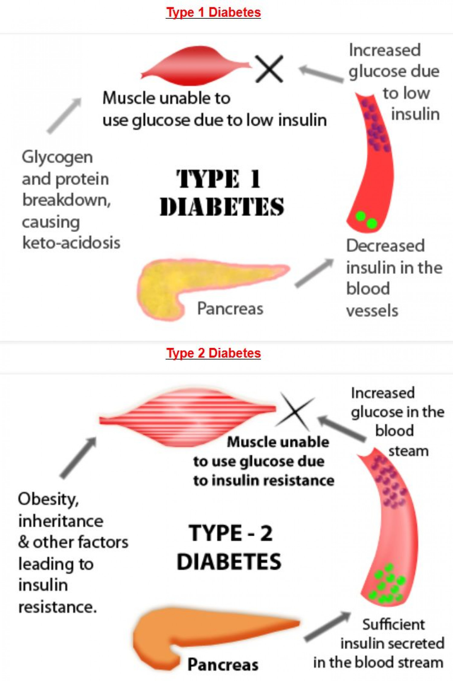 Diabetes: Type 1 Diabetes v/s Type 2 Diabetes Infographic
