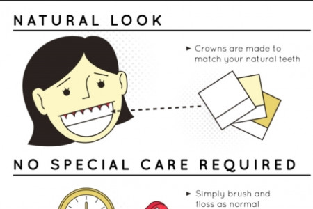 Discover Dental Implants! Infographic