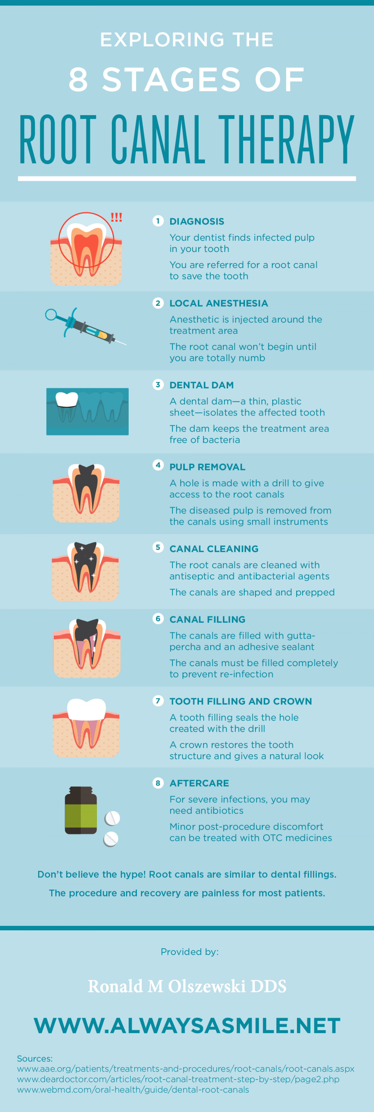 Exploring the 8 Stages of Root Canal Therapy Infographic