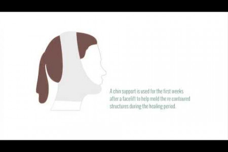 Facelift Procedures and Benefits Infographic