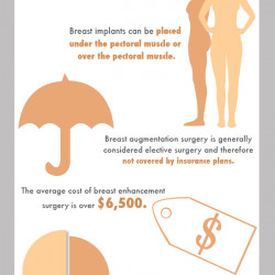 rdl provides breast implant testing for medical