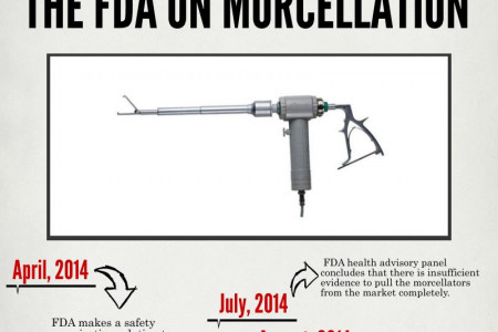 FDA on Morcellation Infographic