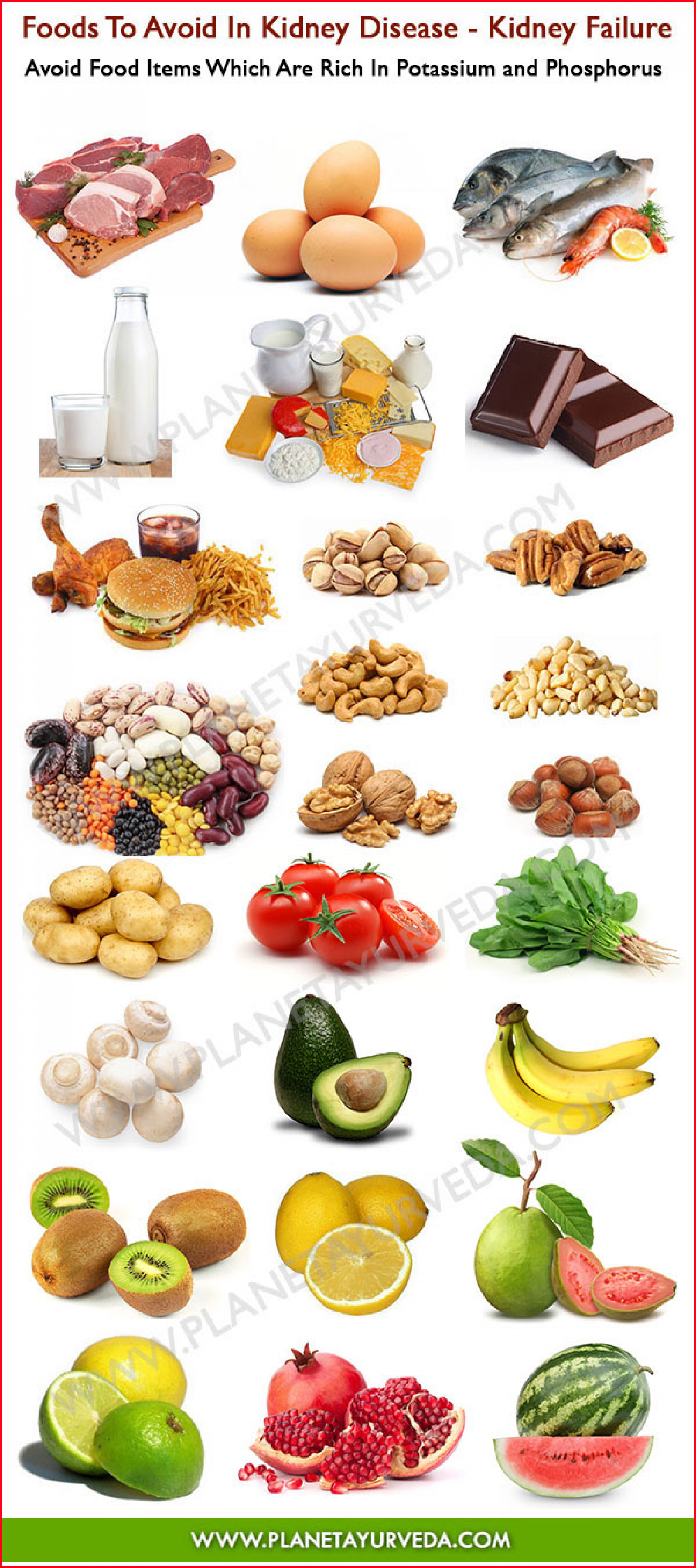 Foods To Avoid In Kidney Failure  Infographic
