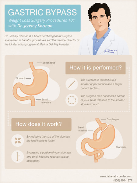 Gastric bypass surgery procedure Infographic
