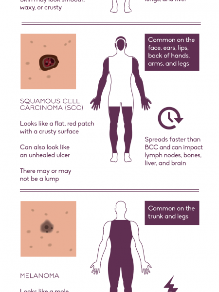 Get Savvy about Skin Cancer  Infographic