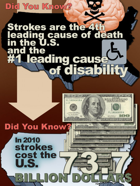 Get the Facts on Stroke  Infographic