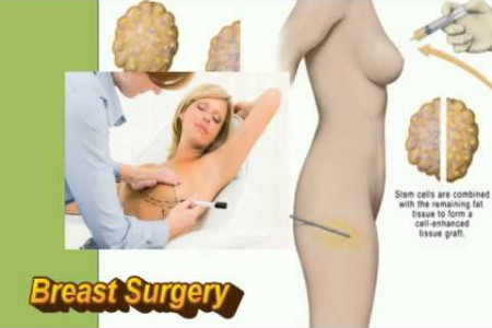 Getting Cosmetic Surgery From Best Cosmetic Surgeon Infographic