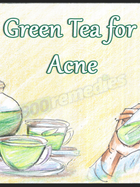 Green Tea For Acne treatment Infographic