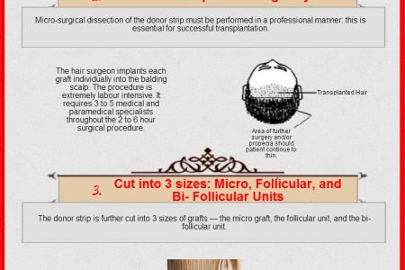 Hair Transplant Procedure Infographic